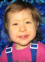 Candace, 31 months, Partial Trisomy 18 and 15